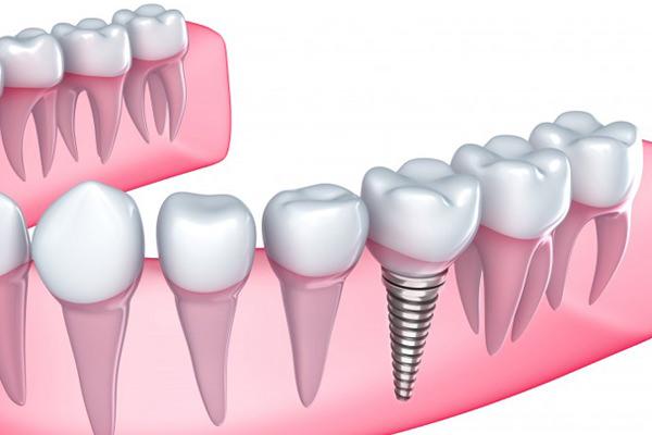 implante-dental-un-solo-dia.jpg