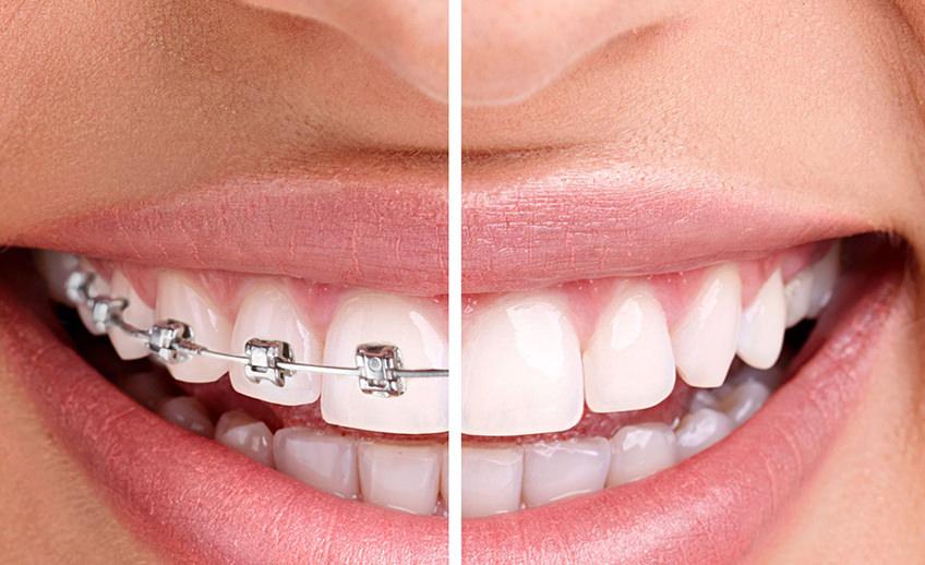 Invisalign-Orthodontics-1-848x518-copia.jpg
