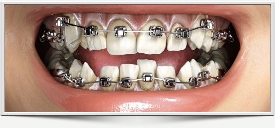 ortodoncia-rapida.jpg